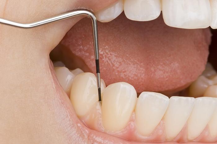 歯垢除去の治療中