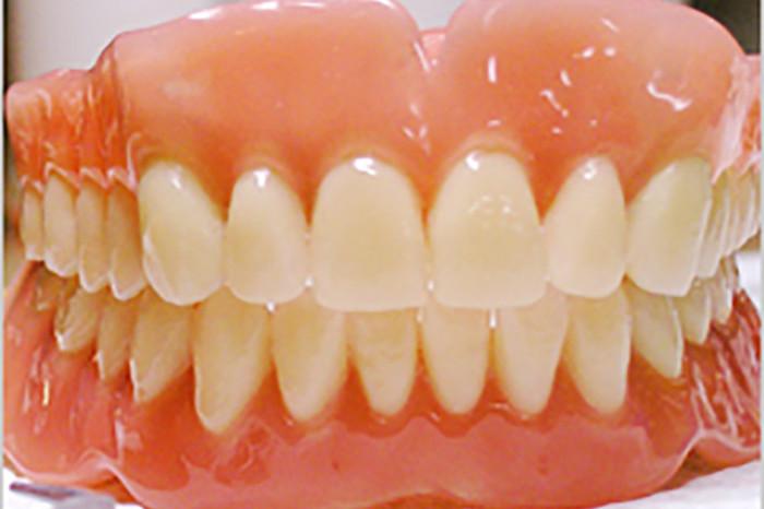 保険入れ歯・義歯