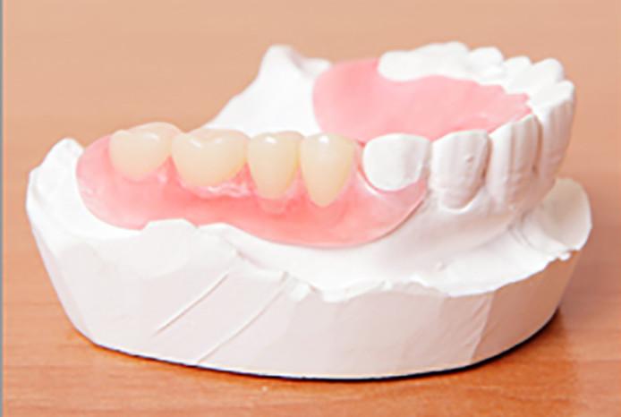 ノンクラプス入れ歯・義歯